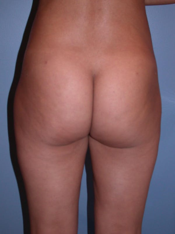 Brazilian Butt Lift Gallery - Patient 4752150 - Image 4