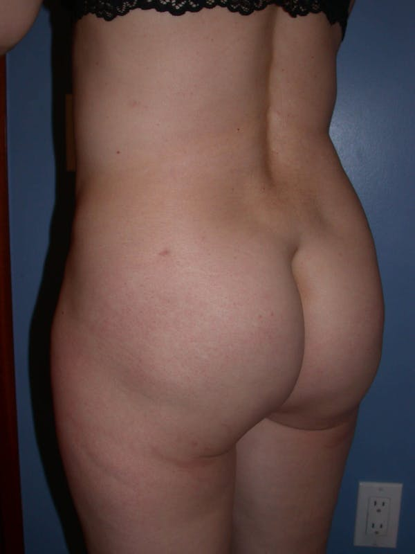 Brazilian Butt Lift Gallery - Patient 4752151 - Image 6
