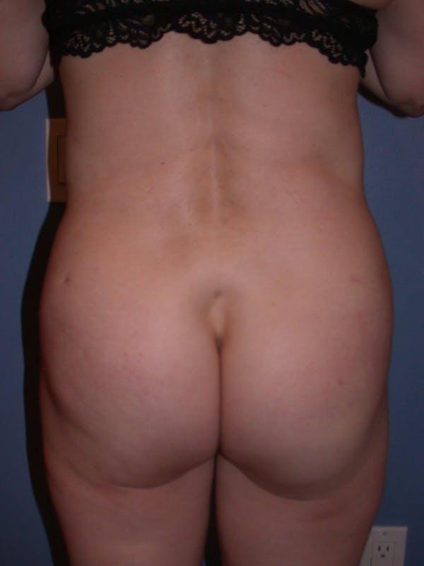 Brazilian Butt Lift Gallery - Patient 4752151 - Image 8