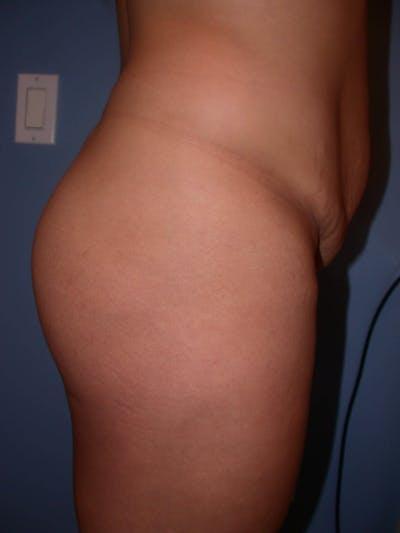 Brazilian Butt Lift Gallery - Patient 4752152 - Image 1