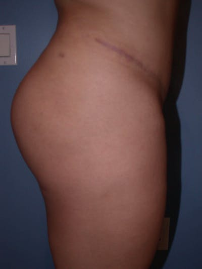 Brazilian Butt Lift Gallery - Patient 4752152 - Image 2