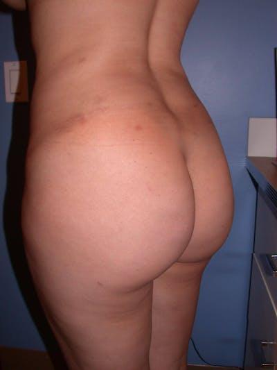 Brazilian Butt Lift Gallery - Patient 4752153 - Image 2