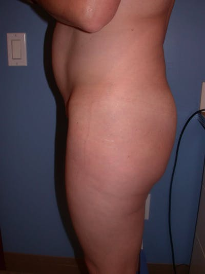 Brazilian Butt Lift Gallery - Patient 4752155 - Image 1