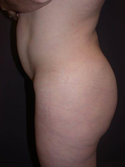 Brazilian Butt Lift Gallery - Patient 4752155 - Image 2