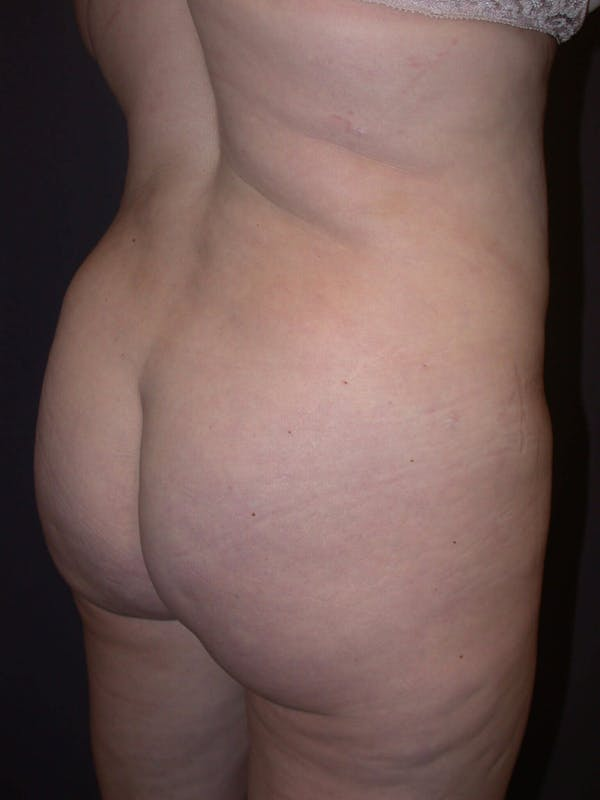 Brazilian Butt Lift Gallery - Patient 4752155 - Image 6