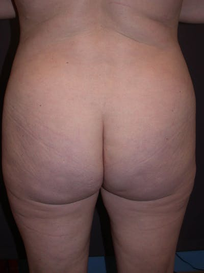 Brazilian Butt Lift Gallery - Patient 4752155 - Image 8