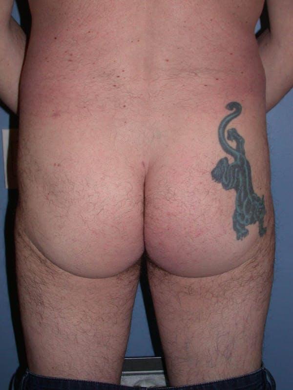 Brazilian Butt Lift Gallery - Patient 4752156 - Image 4