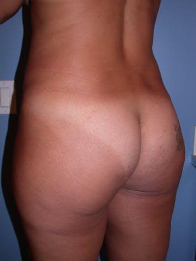 Brazilian Butt Lift Gallery - Patient 4752157 - Image 1