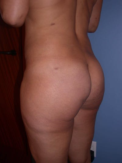 Brazilian Butt Lift Gallery - Patient 4752157 - Image 2