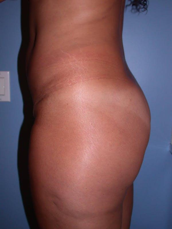 Brazilian Butt Lift Gallery - Patient 4752157 - Image 3