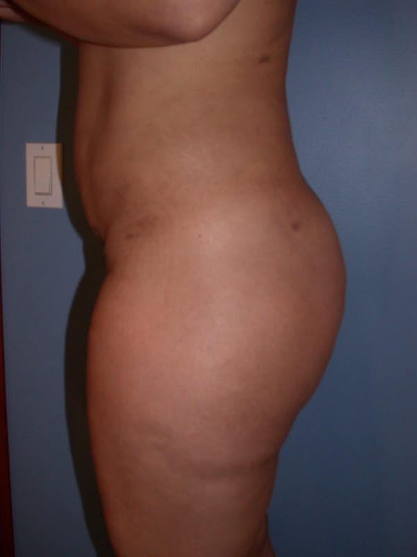 Brazilian Butt Lift Gallery - Patient 4752157 - Image 4