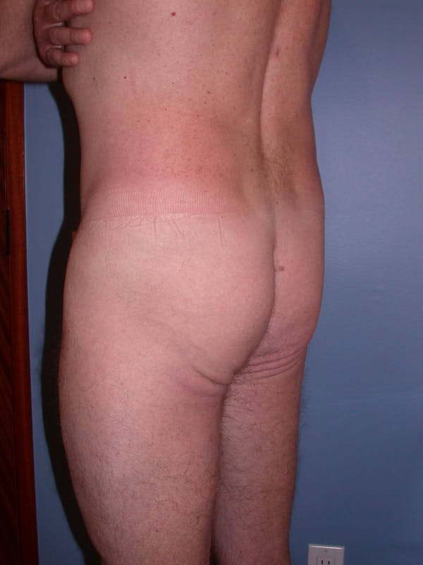 Brazilian Butt Lift Gallery - Patient 4752158 - Image 1