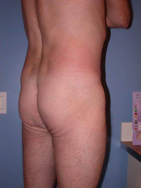 Brazilian Butt Lift Gallery - Patient 4752158 - Image 3