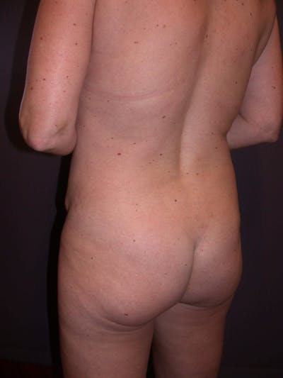 Brazilian Butt Lift Gallery - Patient 4752159 - Image 1