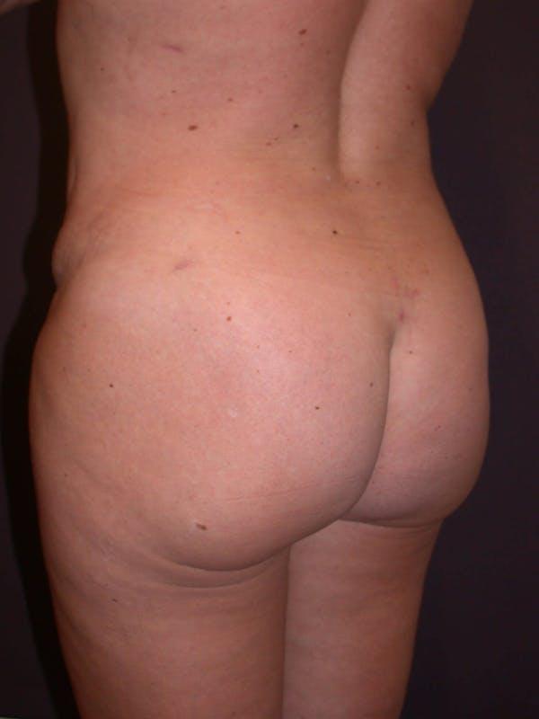 Brazilian Butt Lift Gallery - Patient 4752159 - Image 2