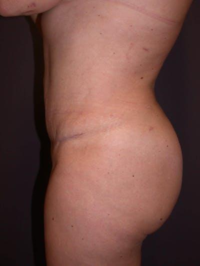 Brazilian Butt Lift Gallery - Patient 4752159 - Image 4