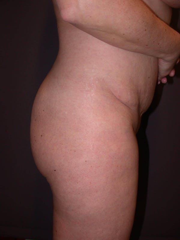 Brazilian Butt Lift Gallery - Patient 4752159 - Image 5