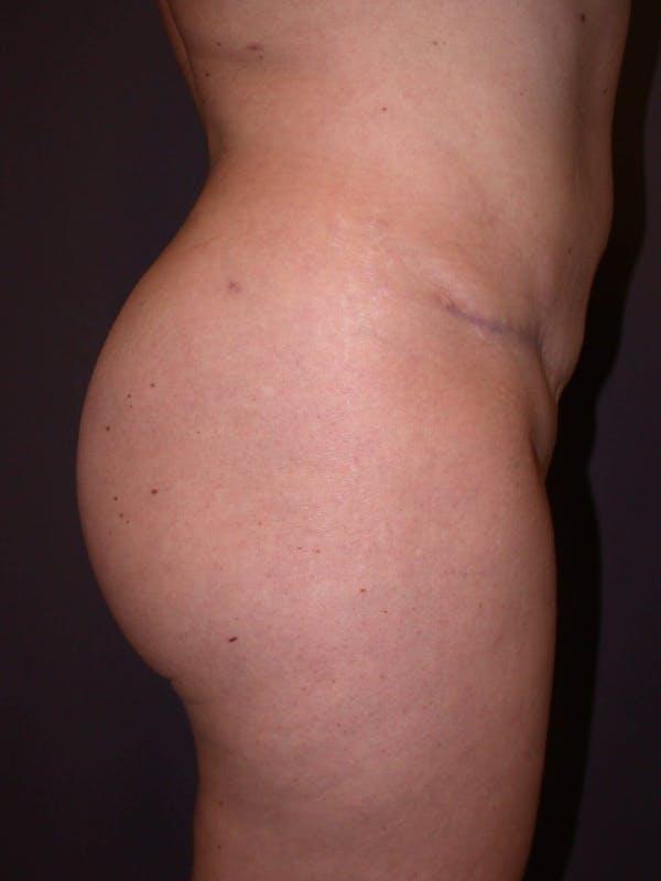 Brazilian Butt Lift Gallery - Patient 4752159 - Image 6