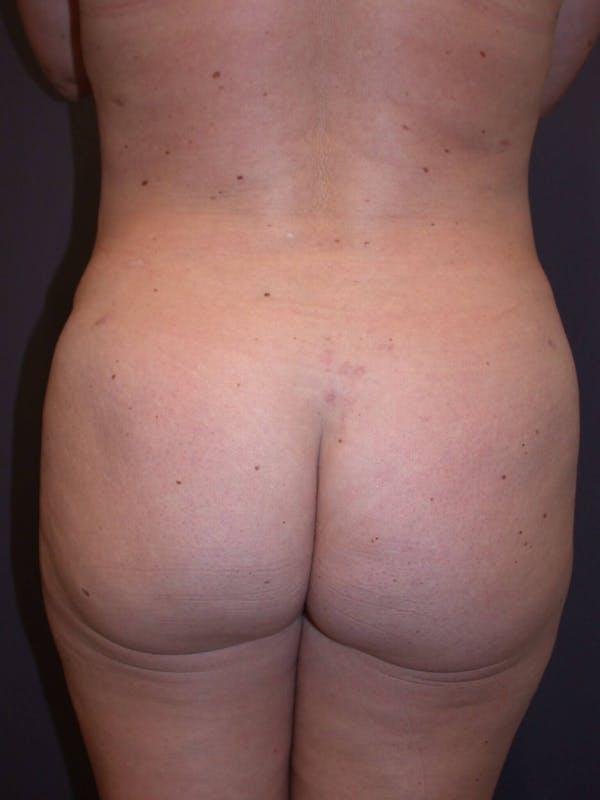 Brazilian Butt Lift Gallery - Patient 4752159 - Image 8