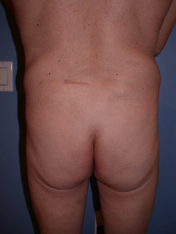 Brazilian Butt Lift Gallery - Patient 4752160 - Image 1
