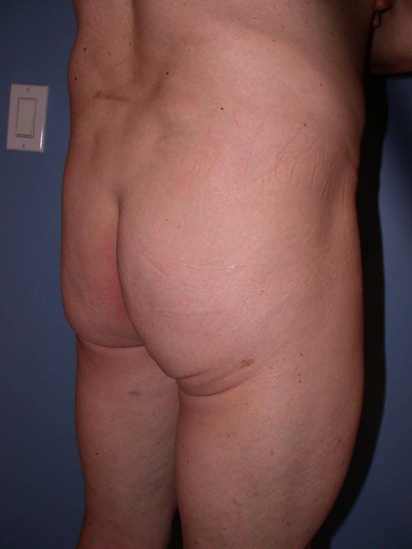 Brazilian Butt Lift Gallery - Patient 4752160 - Image 3