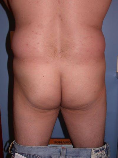 Brazilian Butt Lift Gallery - Patient 4752161 - Image 1