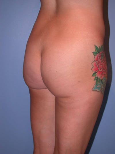 Brazilian Butt Lift Gallery - Patient 4752162 - Image 1