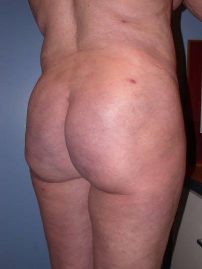Brazilian Butt Lift Gallery - Patient 4752164 - Image 2