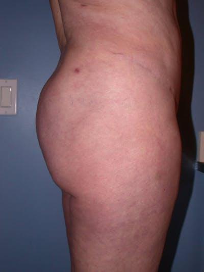 Brazilian Butt Lift Gallery - Patient 4752164 - Image 6
