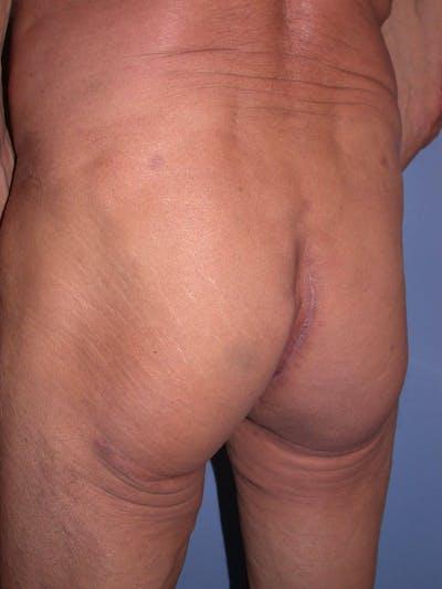 Brazilian Butt Lift Gallery - Patient 4752165 - Image 2