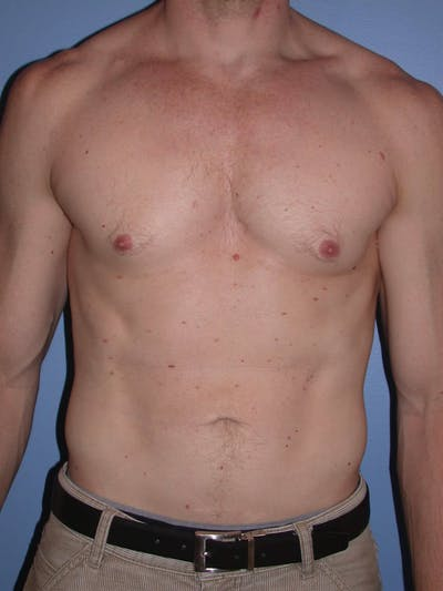 Liposuction Gallery - Patient 4752168 - Image 2
