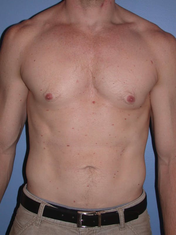 Liposuction San Francisco Before & After
