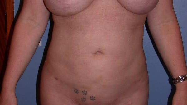 Liposuction Gallery - Patient 4752169 - Image 2