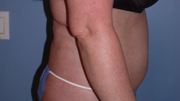 Liposuction Gallery - Patient 4752169 - Image 3