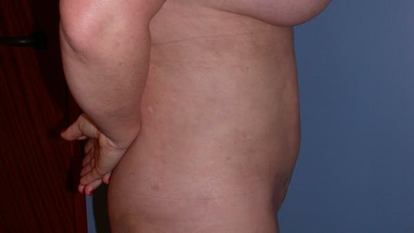 Liposuction Gallery - Patient 4752169 - Image 4