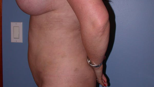 Liposuction Gallery - Patient 4752169 - Image 6