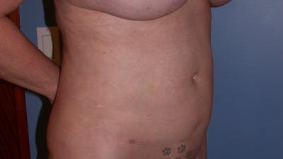 Liposuction Gallery - Patient 4752169 - Image 8