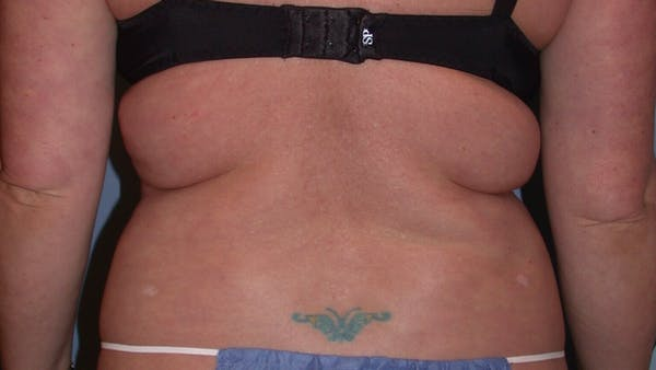 Liposuction Gallery - Patient 4752169 - Image 9