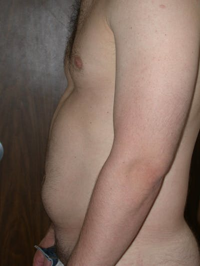 Liposuction Gallery - Patient 4752172 - Image 1
