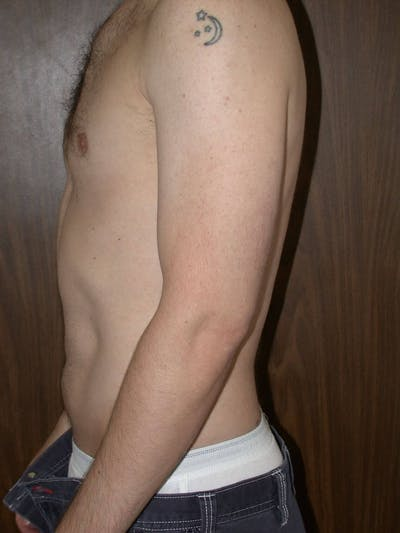 Liposuction Gallery - Patient 4752172 - Image 2