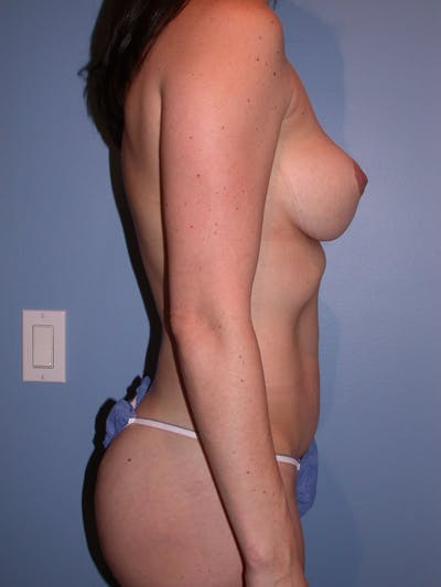 Liposuction Gallery - Patient 4752175 - Image 6