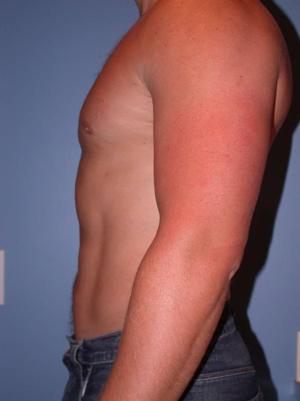 Liposuction Gallery - Patient 4752189 - Image 4