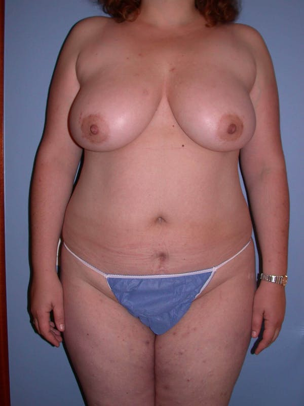 Liposuction Gallery - Patient 4752190 - Image 1