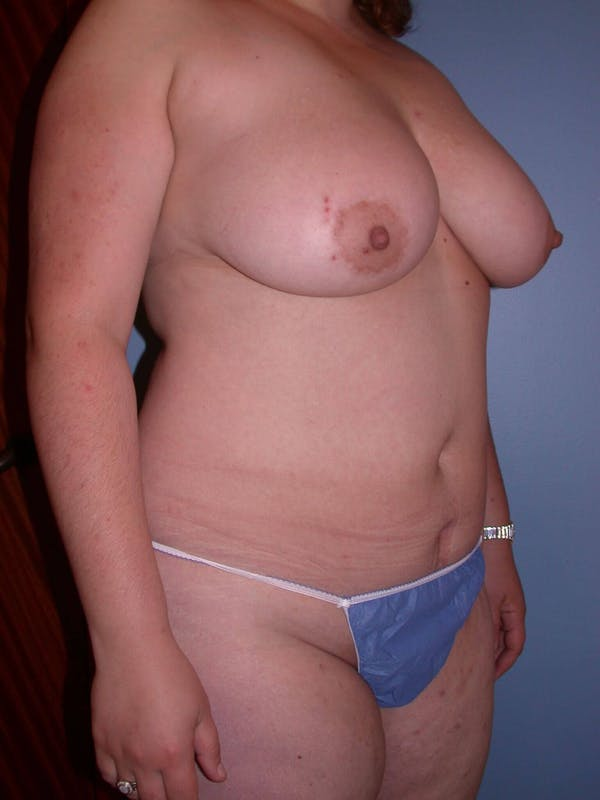Liposuction Gallery - Patient 4752190 - Image 3