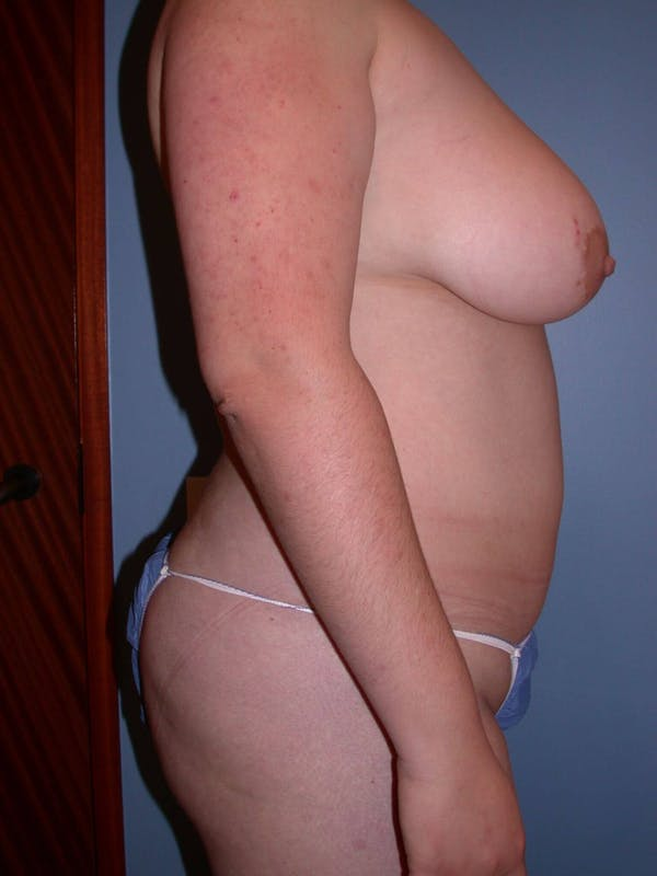 Liposuction Gallery - Patient 4752190 - Image 5