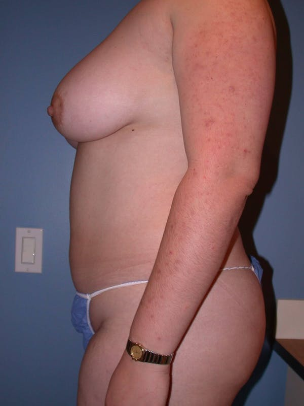 Liposuction Gallery - Patient 4752190 - Image 7