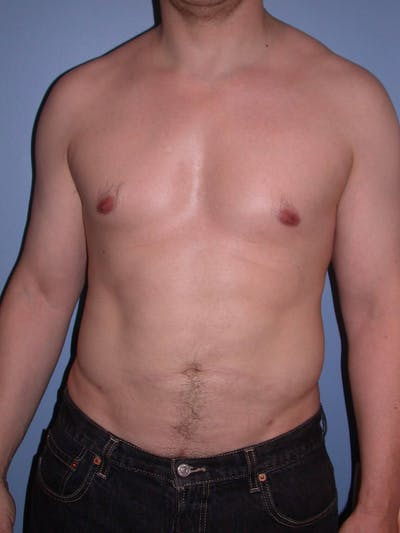 Liposuction Gallery - Patient 4752194 - Image 2