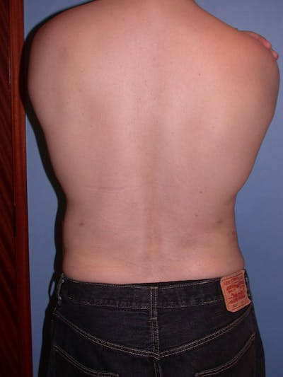 Liposuction Gallery - Patient 4752194 - Image 10