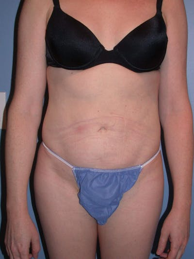 Liposuction Gallery - Patient 4752196 - Image 2