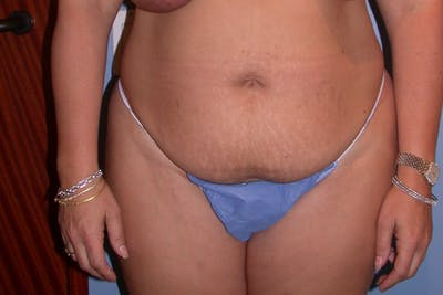 Liposuction Gallery - Patient 4752203 - Image 1